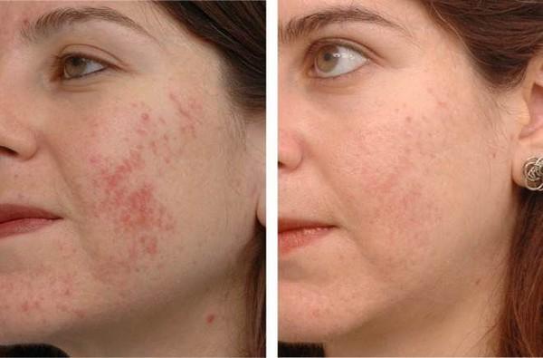 Фото до и после курса процедур ультразвукового пилинга лица №3