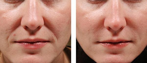 Фото до и после введения золотых нитей под кожу лица №3