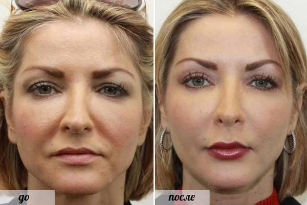 Фото до и после липофилинга №3