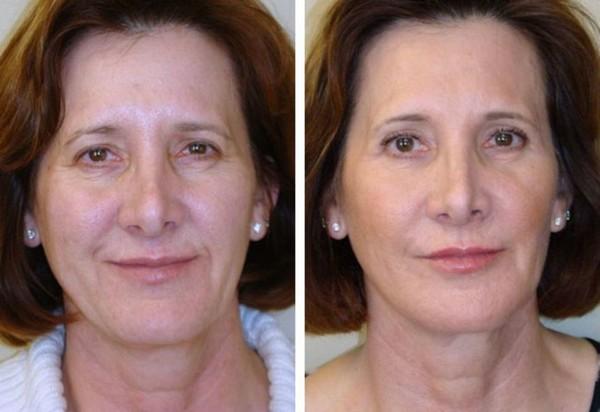 Фото до и после процедуры софтлифтинга №1