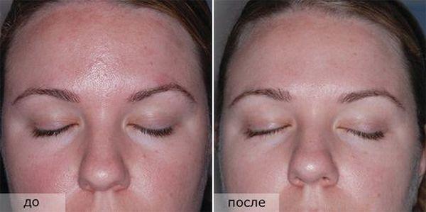 Фото до и после мануальной чистки лица №3