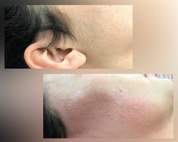 Фото до и после курса процедур ЭЛОС эпиляции №3