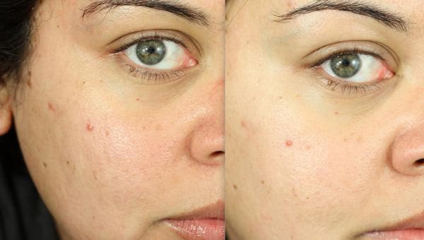 Фото до и после физического поверхностного пилинга №1