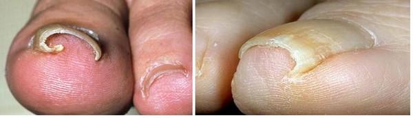 Фото до и после лазерного лечения вросшего ногтя №3