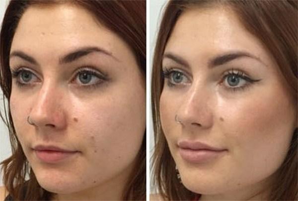 Фото до и после коррекции овала лица с помощью инъекций Ботокса