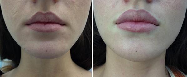 Фото до и после контурной пластики губ №1