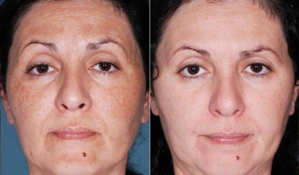 Фото до и после курса процедур криомезотерапии