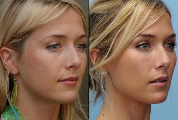 Фото до и после курса процедур с использованием препарата «Рестилайн» (Restylane) №3