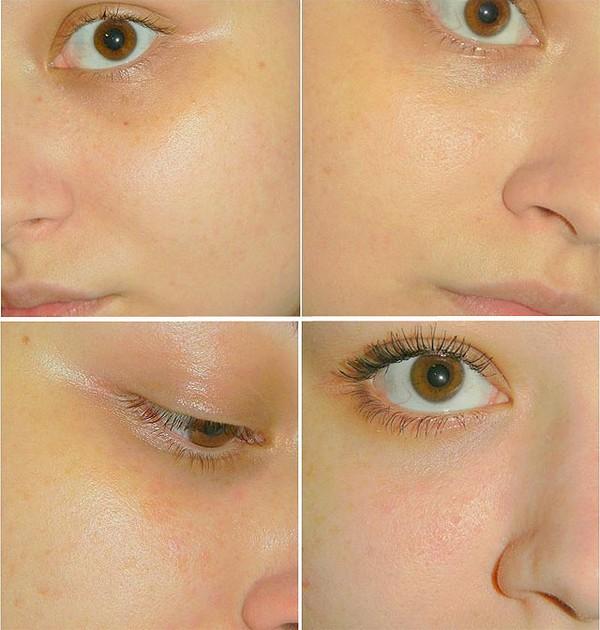 Фото до и после курса процедур салицилового пилинга №3