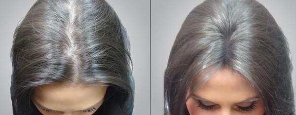 Фото до и после курса процедур мезотерапии для волос №3