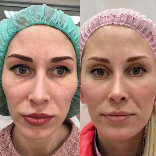 Фото до и после контурной пластики лица №3