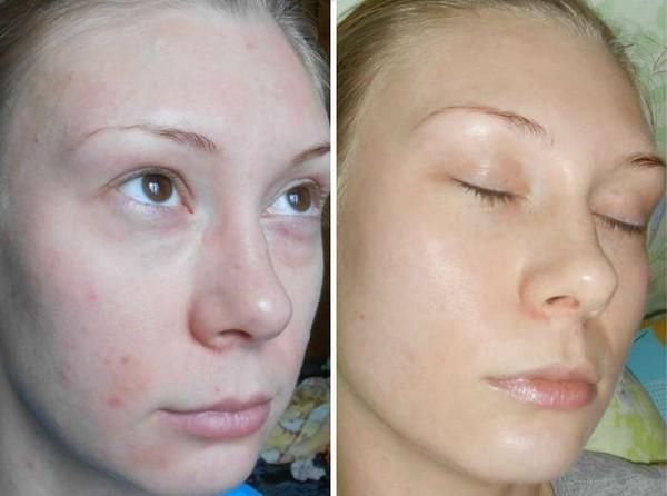 Фото до и после курса процедур фруктового (гликолевого) пилинга