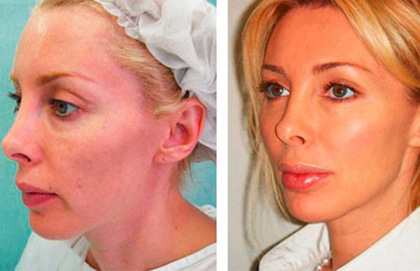 Фото до и после коррекции овала лица с помощью введения филлеров
