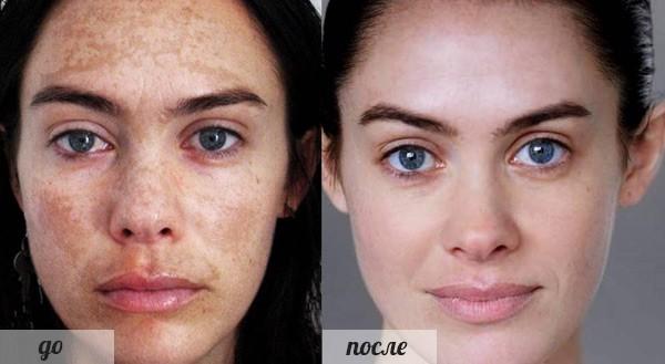 Фото до и после курса процедур фруктового (молочного) пилинга