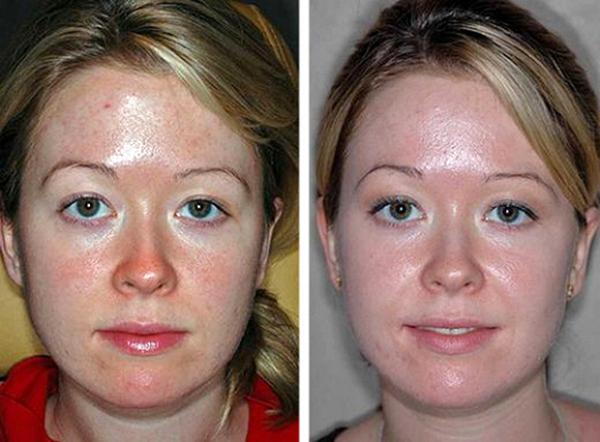 Фото до и после биологического поверхностного пилинга №1