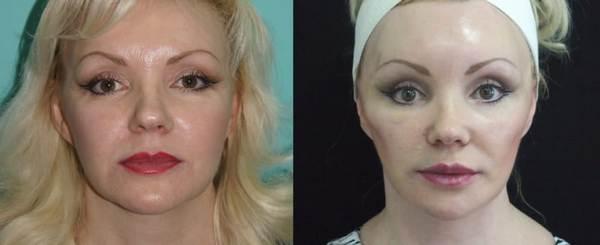 Фото до и после коррекции овала лица с помощью использования нитей