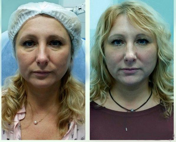 Фото до и после контурной пластики филлерами №5