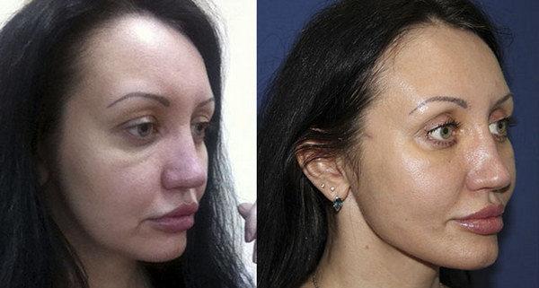 Фото до и после коррекции овала лица с помощью эндотинов