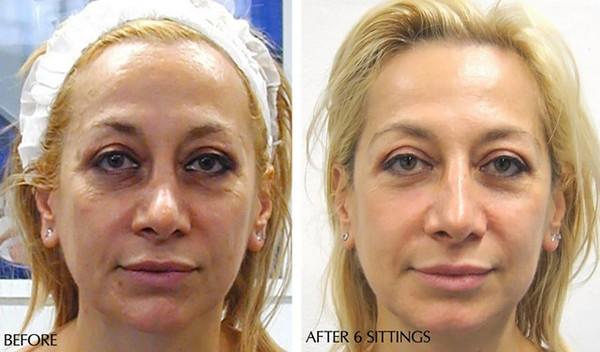 Фото до и после курса процедур кислородной мезотерапии