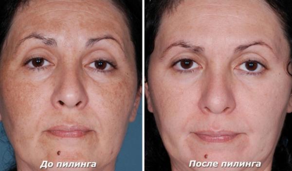 Фото до и после биологического поверхностного пилинга №2