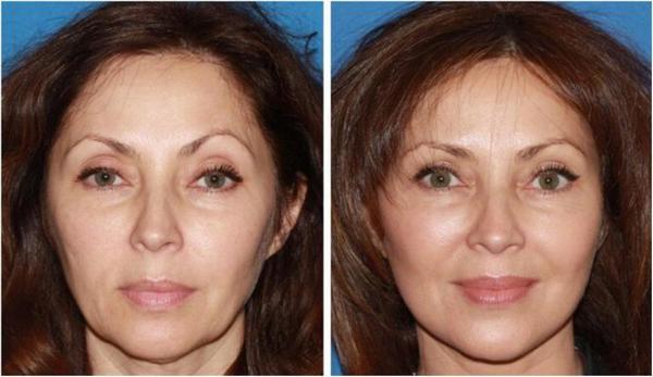 Фото до и после коррекции овала лица с помощью различных упражнений