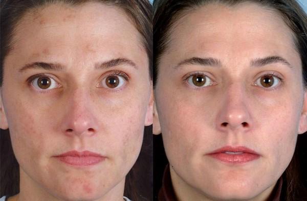 Фото до и после курса процедур ультрафонофореза