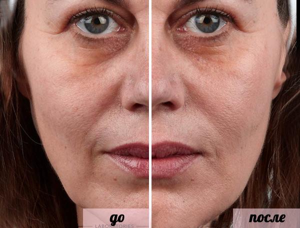 Фото до и после использования средства Теосиаль (Teosyal) №2