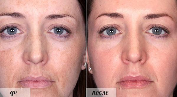 Фото до и после пилинга с использованием молочной кислоты