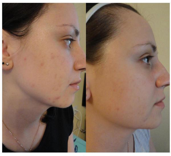 Фото до и после курса процедур миндального пилинга №3
