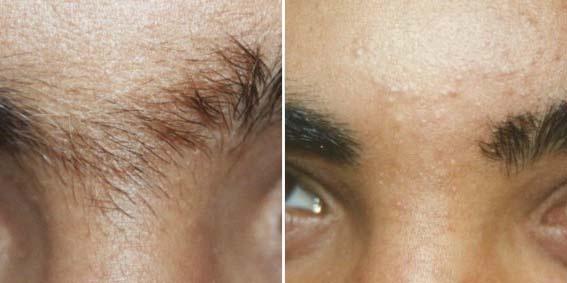 Фото до и после Qool-эпиляции №1