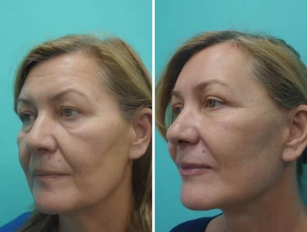 Фото до и после эндоскопического СМАС лифтинга №1