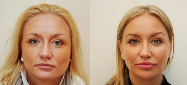 Фото до и после эндоскопической подтяжки скул