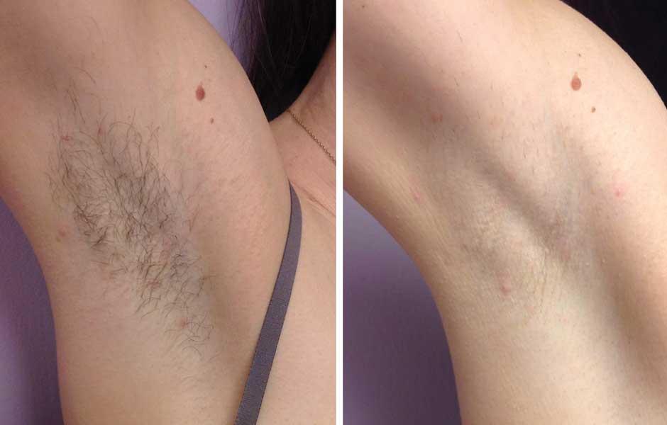 Фото до и после эпиляции диодным лазером №2