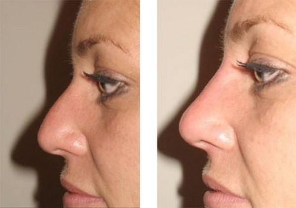 Фото до и после безоперационной ринопластики с помощью филлеров №2