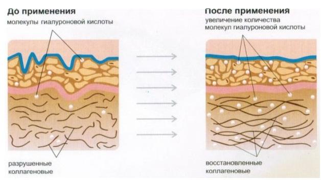 Механизм действия филлеров