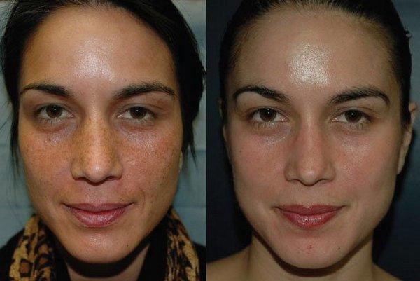 Фото до и после пилинга с использованием фитиновой кислоты