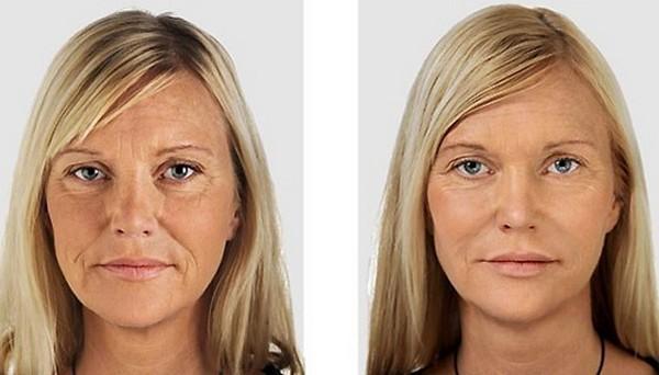 Фото до и после биоармирования для подтяжки скул