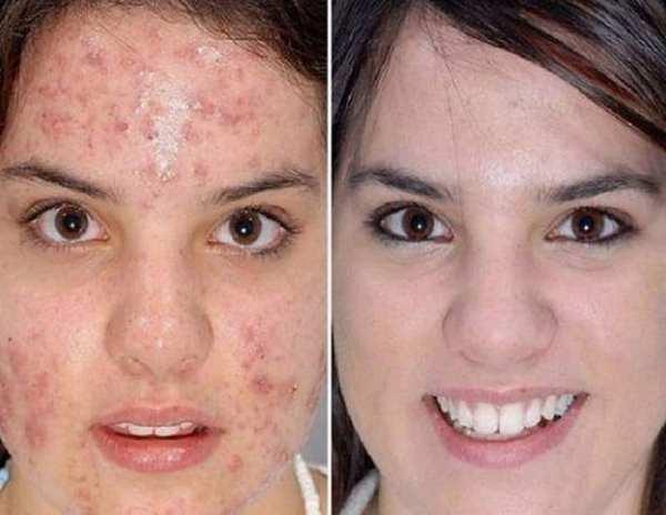 Фото до и после курса процедур гликолевого пилинга №1
