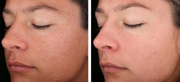 Фото до и после эрбиевого лазерного пилинга лица