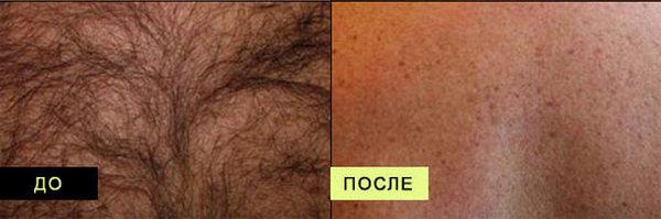 Фото до и после курса процедур фотоэпиляции №2