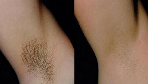 Фото до и после курса процедур фотоэпиляции №3