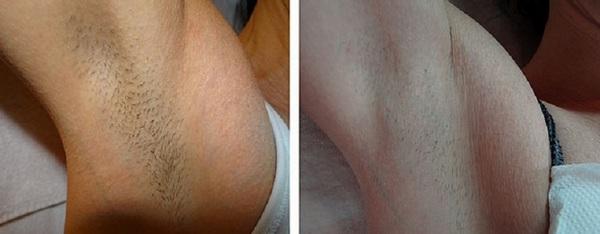 Фото до и после курса процедур фотоэпиляции №1