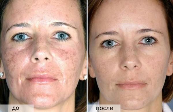 Фото до и после фракционного лазерного пилинга лица