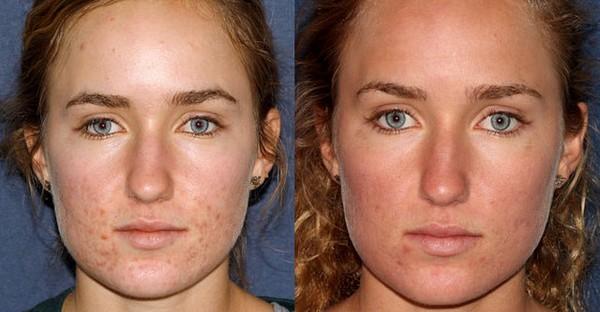 Фото до и после процедур фракционного фототермолиза для подтяжки скул