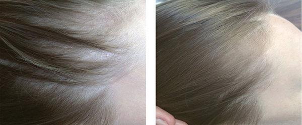 Фото до и после лечения диффузной алопеции с помощью инъекций витаминов №2