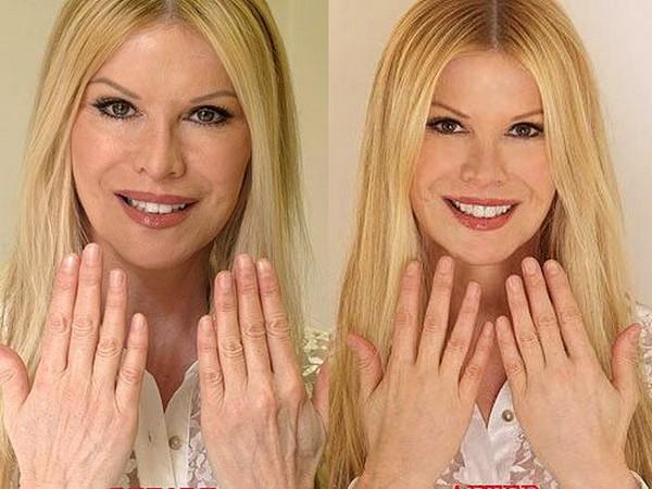 Фото до и после использования препарата Принцесс Волюм (Princess Volume) №2