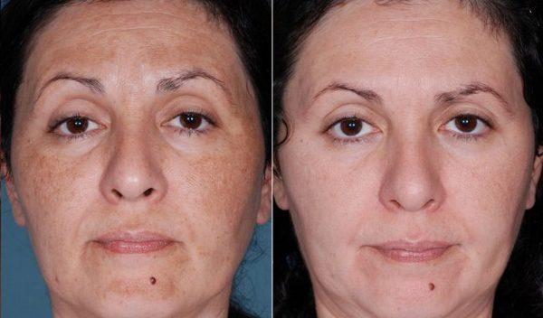 Фото до и после пилинга с использованием гликолевой кислоты