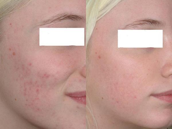 Фото до и после курса процедур гликолевого пилинга №2