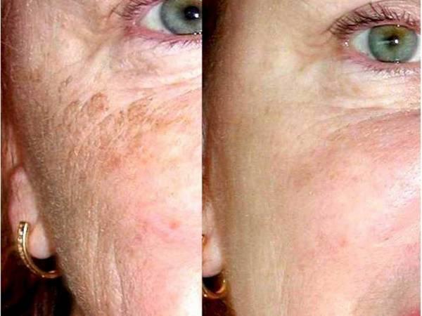 Фото до и после курса процедур гликолевого пилинга №3