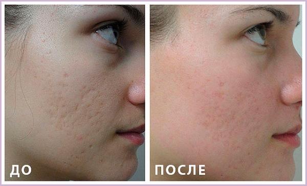 Фото до и после горячего лазерного пилинга лица